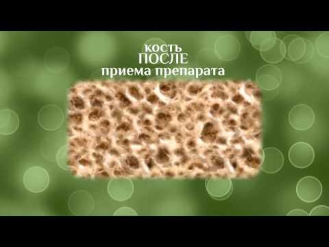 Остеомед. Лечение остеопороза